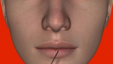 Modelujemy nos kwasem hialuronowym